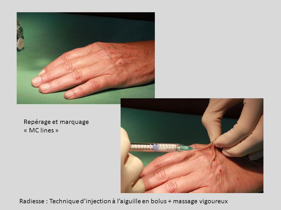 Repérage et marquage « MC lines » Radiesse : Technique d'injection à l'aiguille en bolus + massage vigoureux.