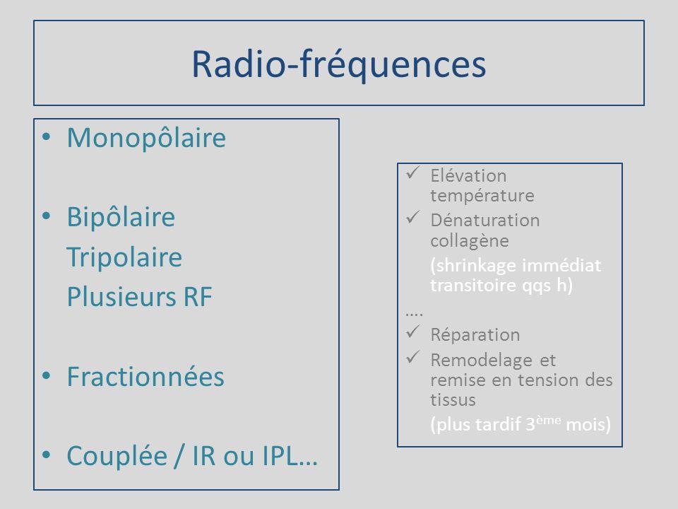 Radio-fréquences Monopôlaire Bipôlaire Tripolaire Plusieurs RF