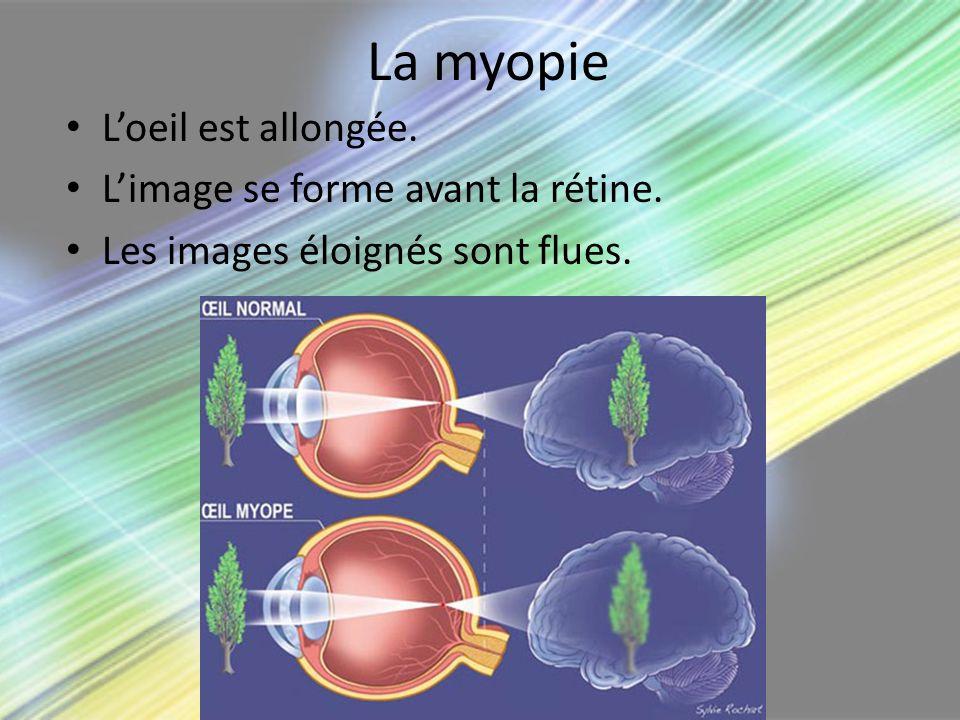 La myopie L'oeil est allongée. L'image se forme avant la rétine.