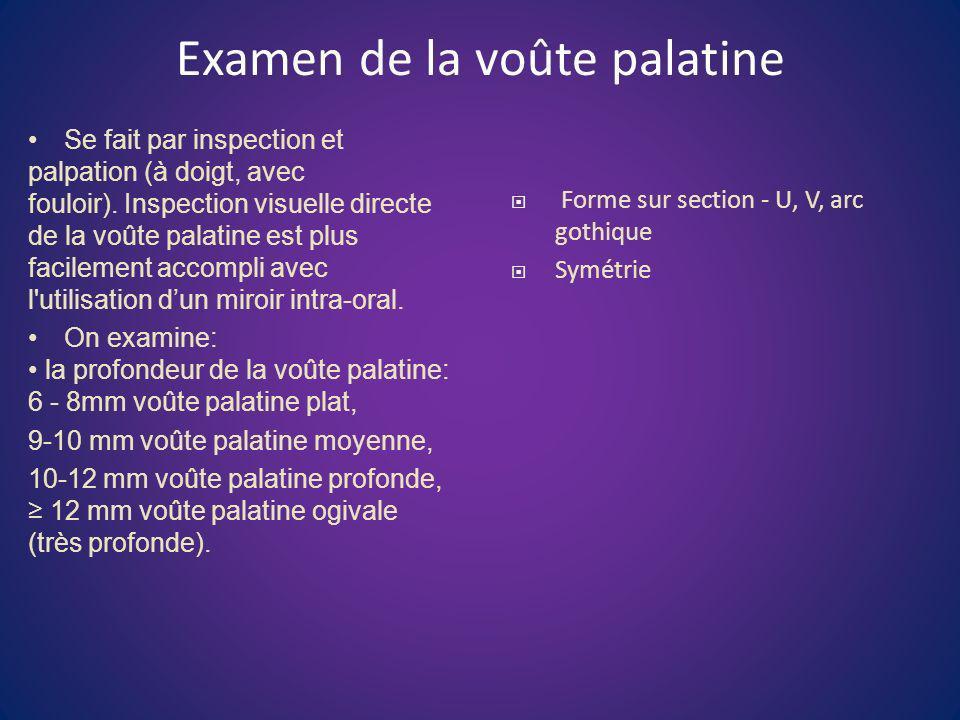 Examen de la voûte palatine