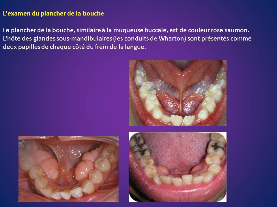 L examen du plancher de la bouche