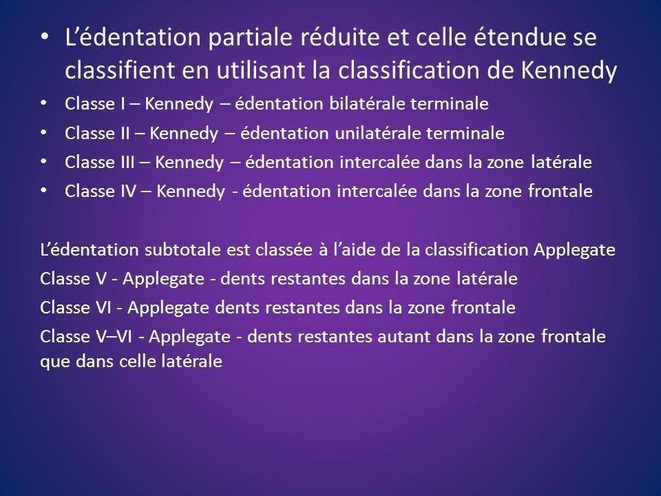 L'édentation partiale réduite et celle étendue se classifient en utilisant la classification de Kennedy