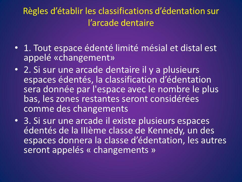 1. Tout espace édenté limité mésial et distal est appelé «changement»