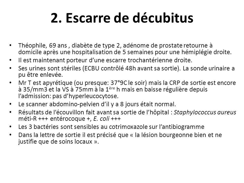 2. Escarre de décubitus