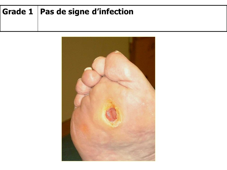 Grade 1 Pas de signe d'infection