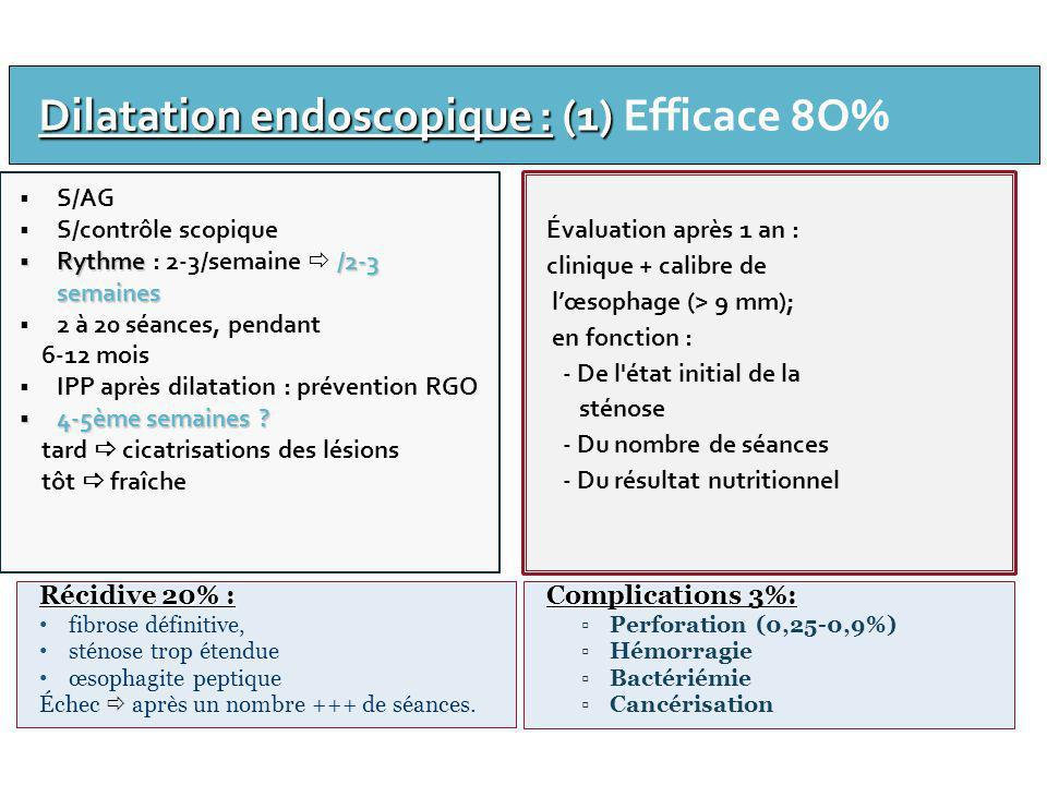 Dilatation endoscopique : (1) Efficace 8O%