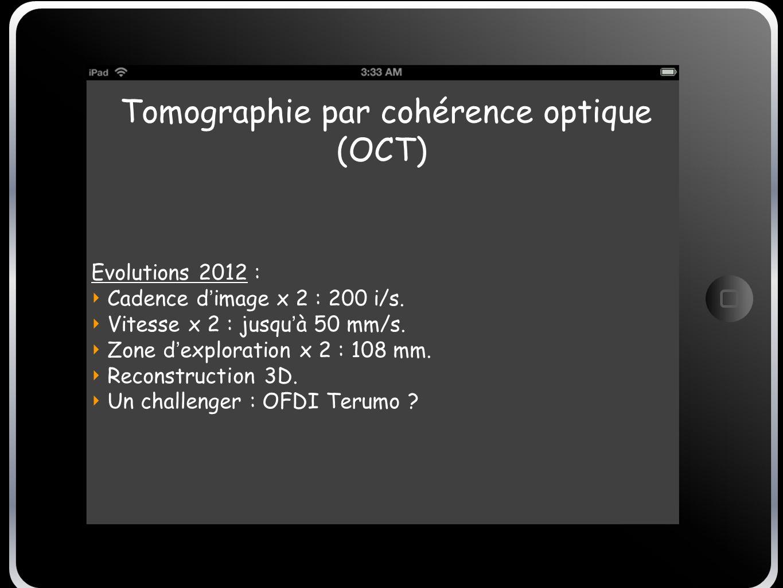 Tomographie par cohérence optique (OCT)