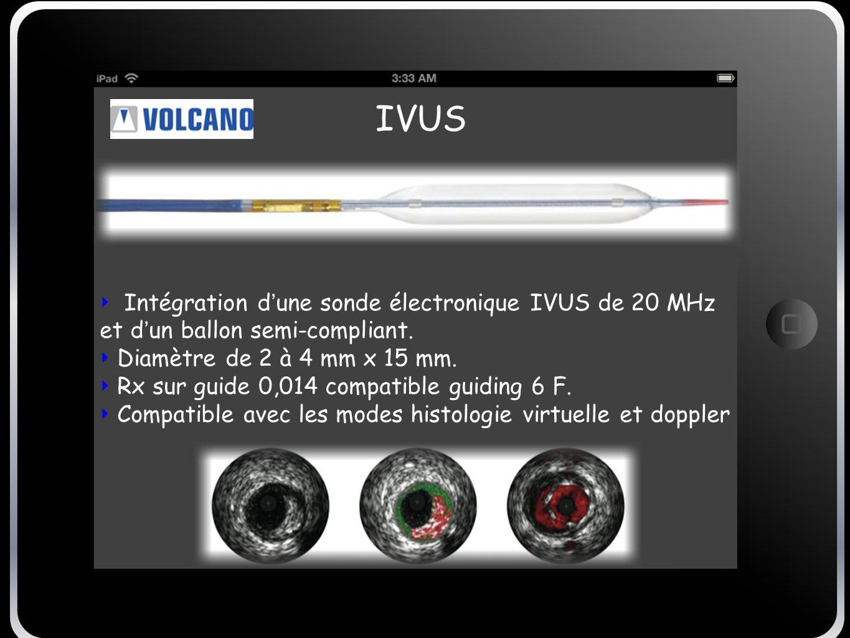 IVUS Intégration d'une sonde électronique IVUS de 20 MHz et d'un ballon semi-compliant. Diamètre de 2 à 4 mm x 15 mm.