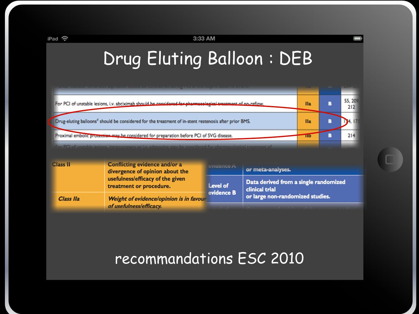 Drug Eluting Balloon : DEB