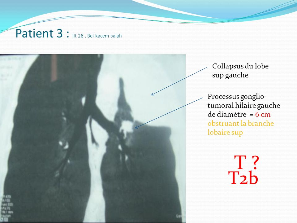 Patient 3 : lit 26 , Bel kacem salah