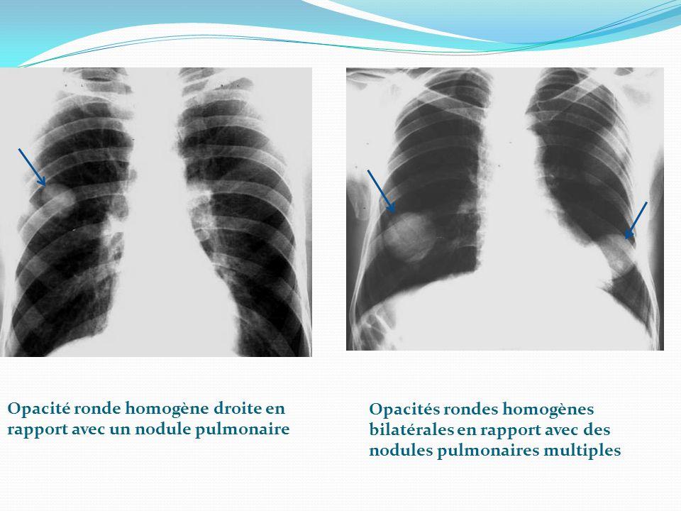 Opacité ronde homogène droite en rapport avec un nodule pulmonaire