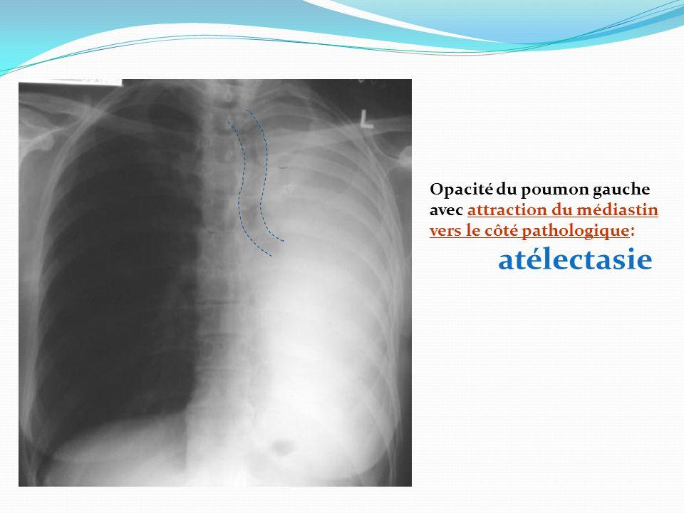 Opacité du poumon gauche avec attraction du médiastin vers le côté pathologique: atélectasie