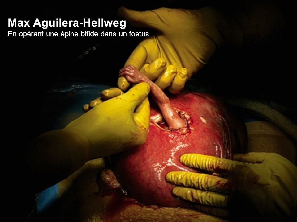 Max Aguilera-Hellweg En opérant une épine bifide dans un foetus