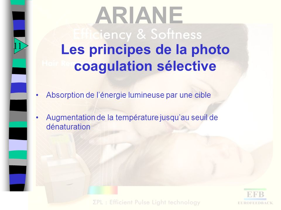 Les principes de la photo coagulation sélective