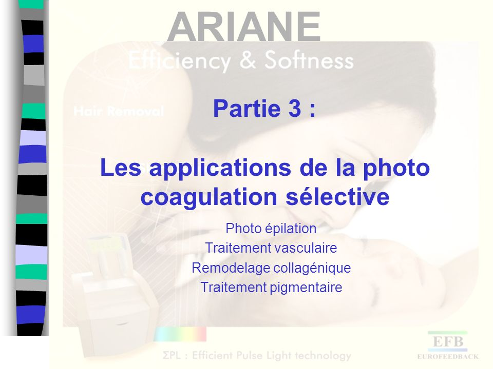 Partie 3 : Les applications de la photo coagulation sélective