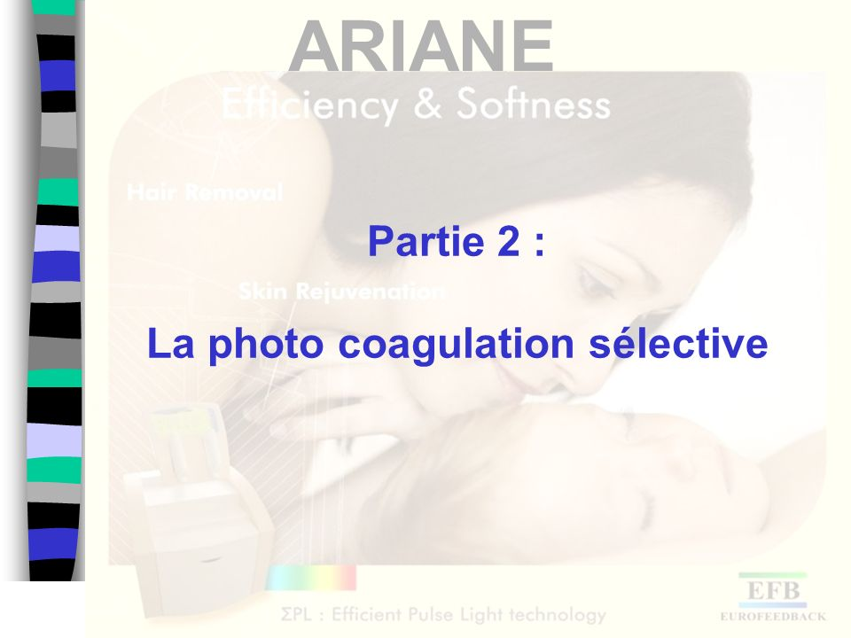Partie 2 : La photo coagulation sélective