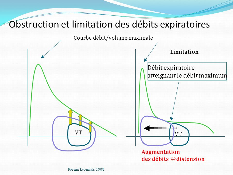 Obstruction et limitation des débits expiratoires