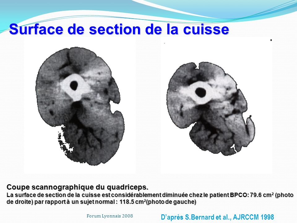 Surface de section de la cuisse