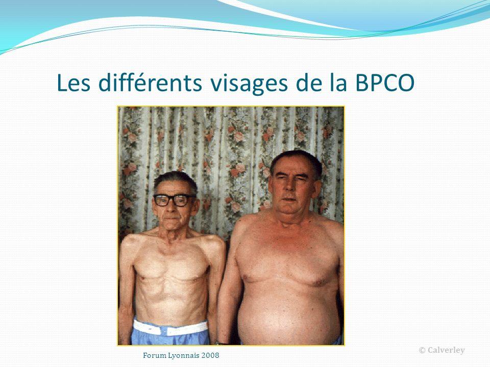 Les différents visages de la BPCO