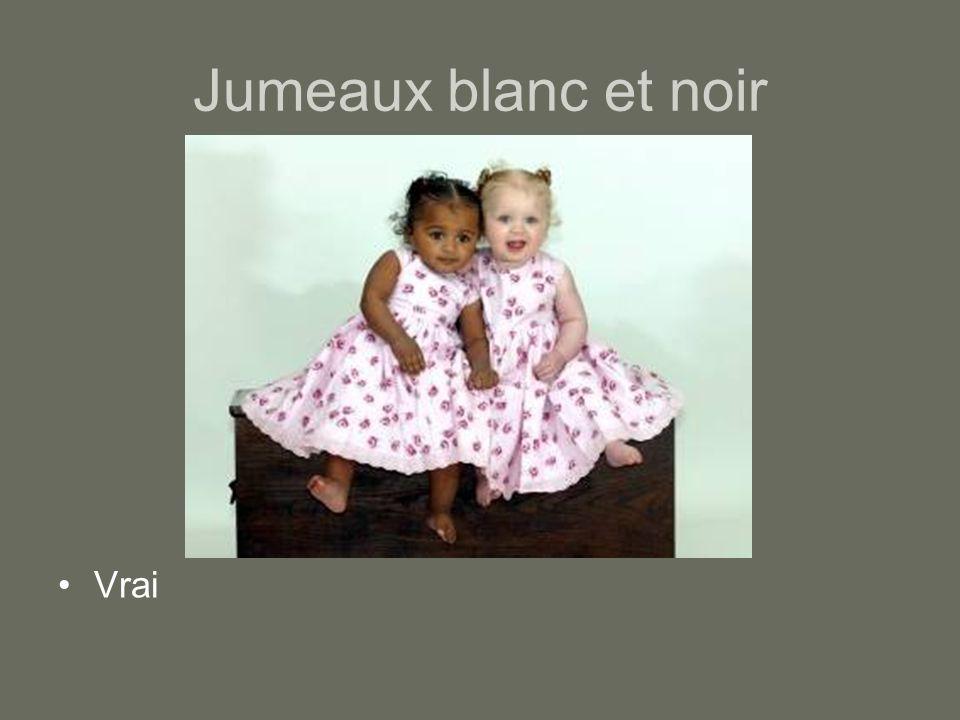 Jumeaux blanc et noir Vrai