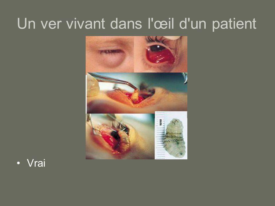 Un ver vivant dans l œil d un patient