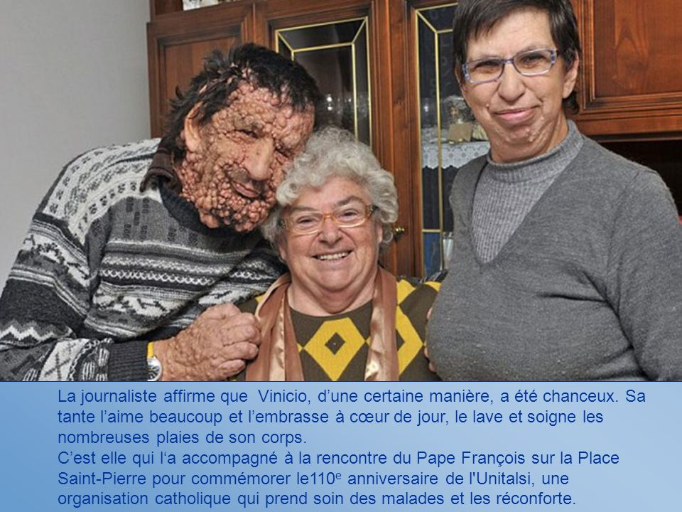 La journaliste affirme que Vinicio, d'une certaine manière, a été chanceux. Sa tante l'aime beaucoup et l'embrasse à cœur de jour, le lave et soigne les nombreuses plaies de son corps.