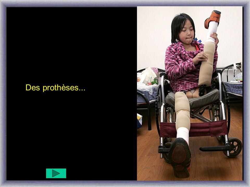 Des prothèses...