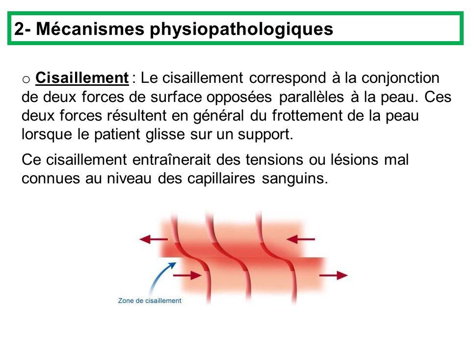 2- Mécanismes physiopathologiques
