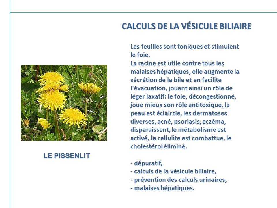 CALCULS DE LA VÉSICULE BILIAIRE