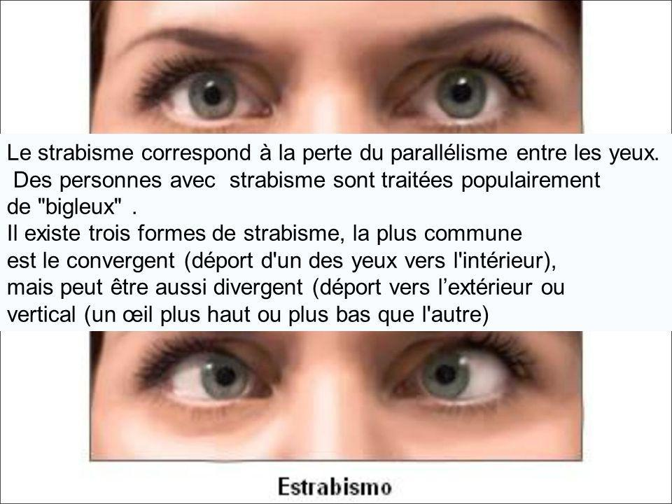 Le strabisme correspond à la perte du parallélisme entre les yeux.