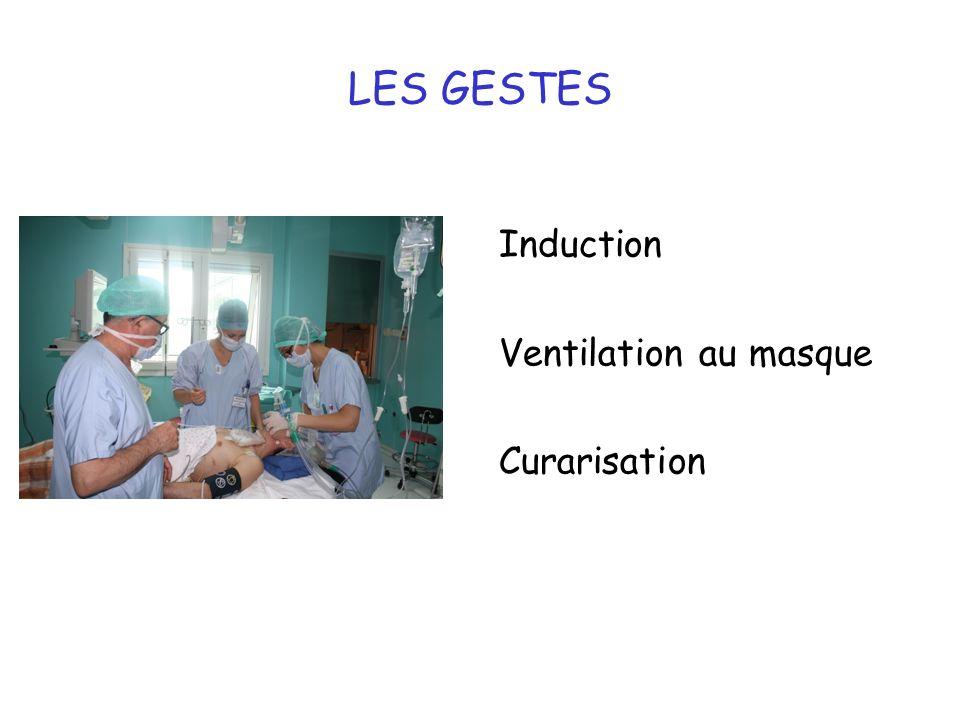 LES GESTES Induction Ventilation au masque Curarisation