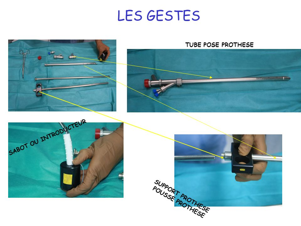 LES GESTES TUBE POSE PROTHESE SABOT OU INTRODUCTEUR SUPPORT PROTHESE
