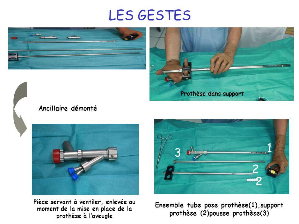 Ensemble tube pose prothèse(1),support prothèse (2)pousse prothèse(3)