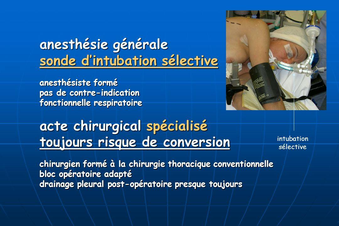 sonde d'intubation sélective