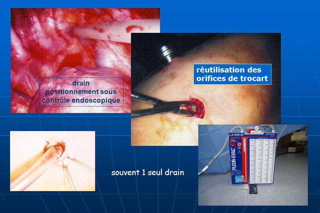 contrôle endoscopique