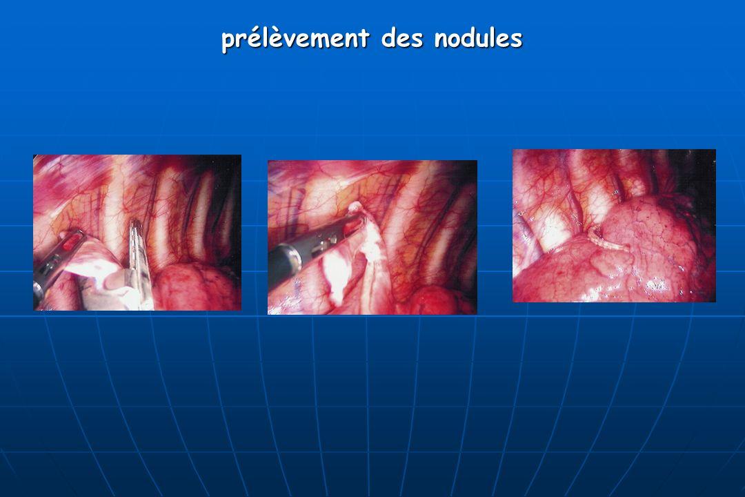 prélèvement des nodules