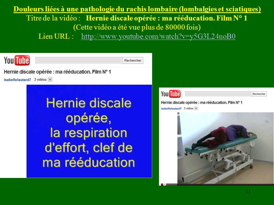 Douleurs liées à une pathologie du rachis lombaire (lombalgies et sciatiques) Titre de la vidéo : Hernie discale opérée : ma rééducation.