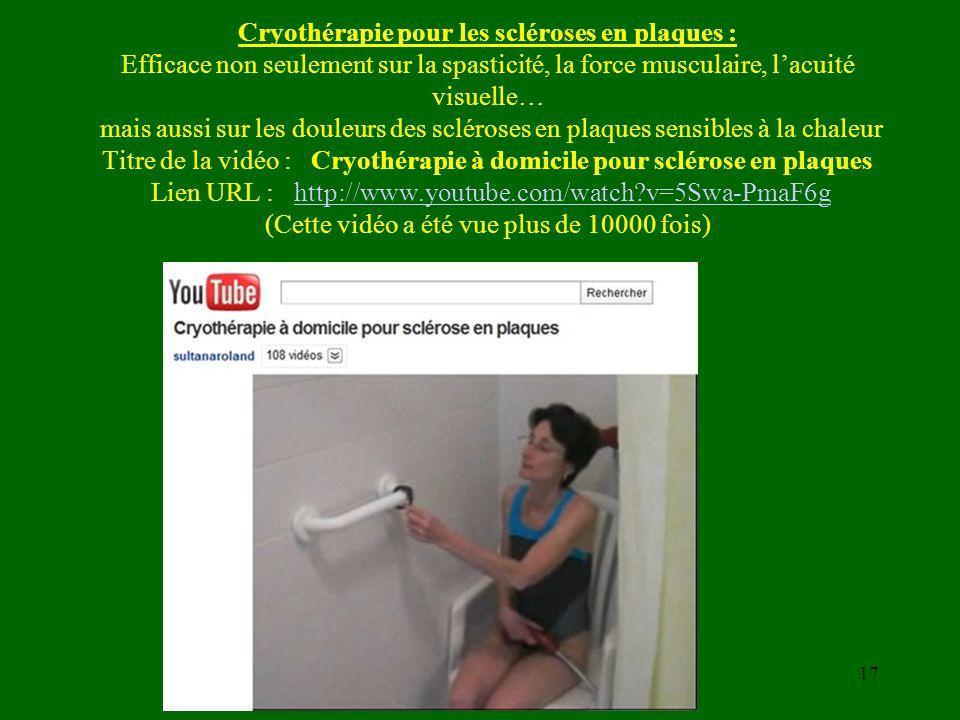 Cryothérapie pour les scléroses en plaques : Efficace non seulement sur la spasticité, la force musculaire, l'acuité visuelle… mais aussi sur les douleurs des scléroses en plaques sensibles à la chaleur Titre de la vidéo : Cryothérapie à domicile pour sclérose en plaques Lien URL : http://www.youtube.com/watch v=5Swa-PmaF6g (Cette vidéo a été vue plus de 10000 fois)