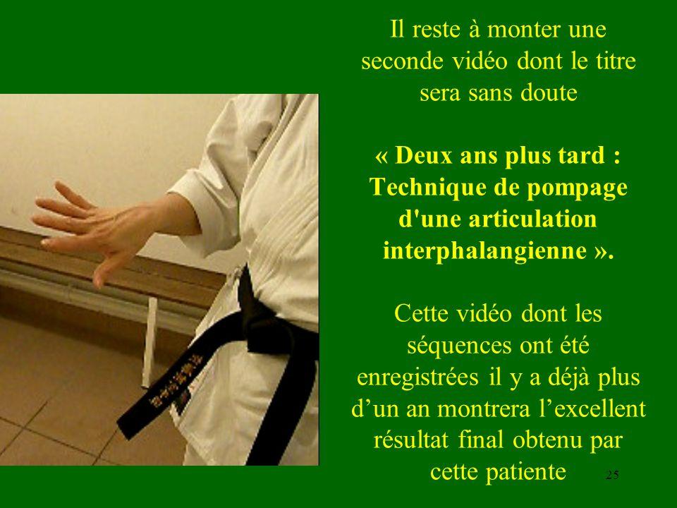 Il reste à monter une seconde vidéo dont le titre sera sans doute « Deux ans plus tard : Technique de pompage d une articulation interphalangienne ».