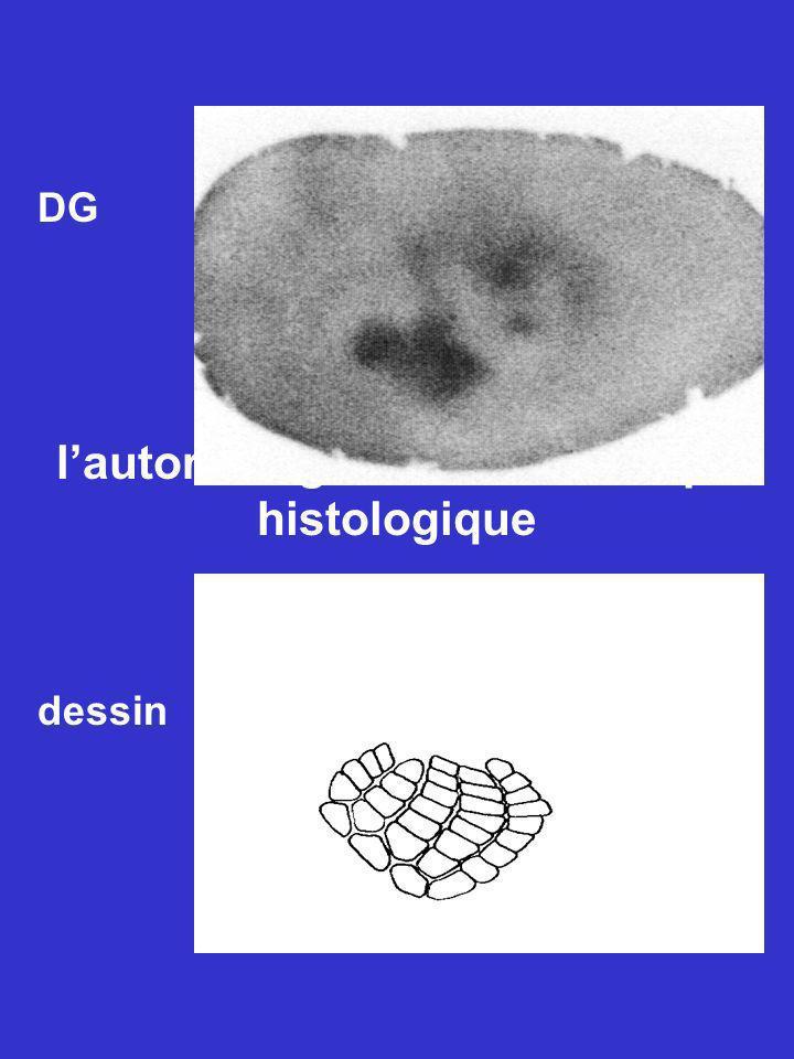 Relation entre l'autoradiogramme et la coupe histologique