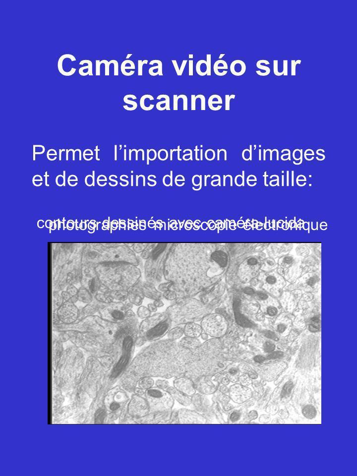 Caméra vidéo sur scanner