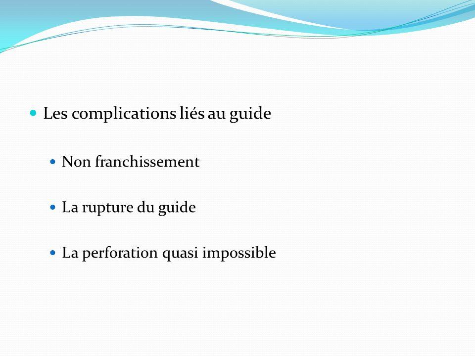 Les complications liés au guide