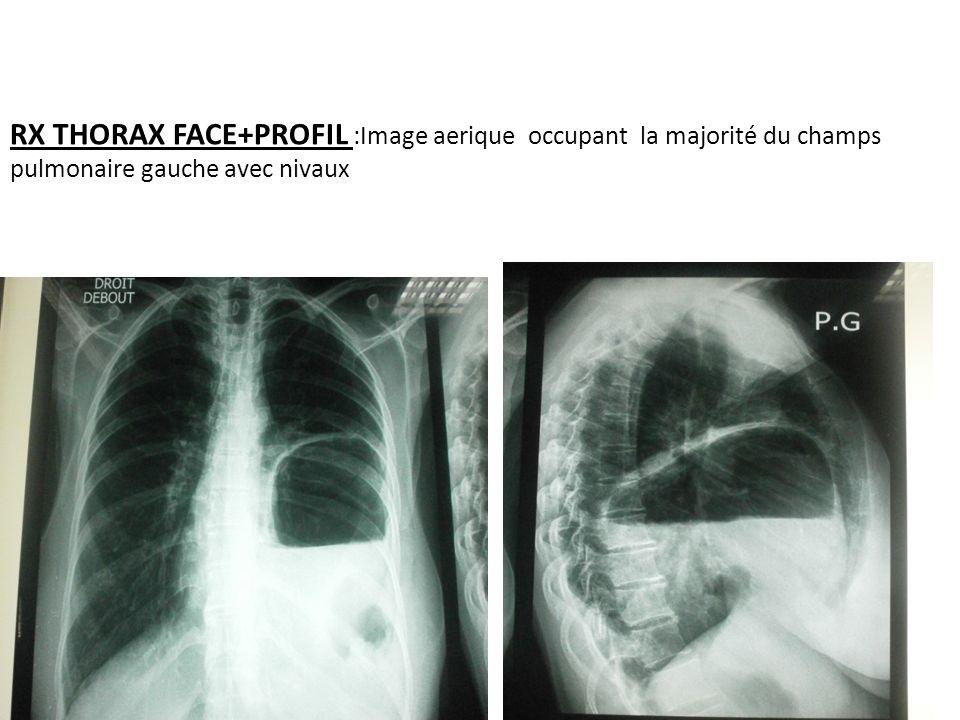 RX THORAX FACE+PROFIL :Image aerique occupant la majorité du champs pulmonaire gauche avec nivaux