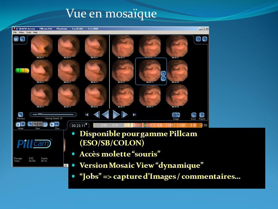 Vue en mosaïque Disponible pour gamme Pillcam (ESO/SB/COLON)