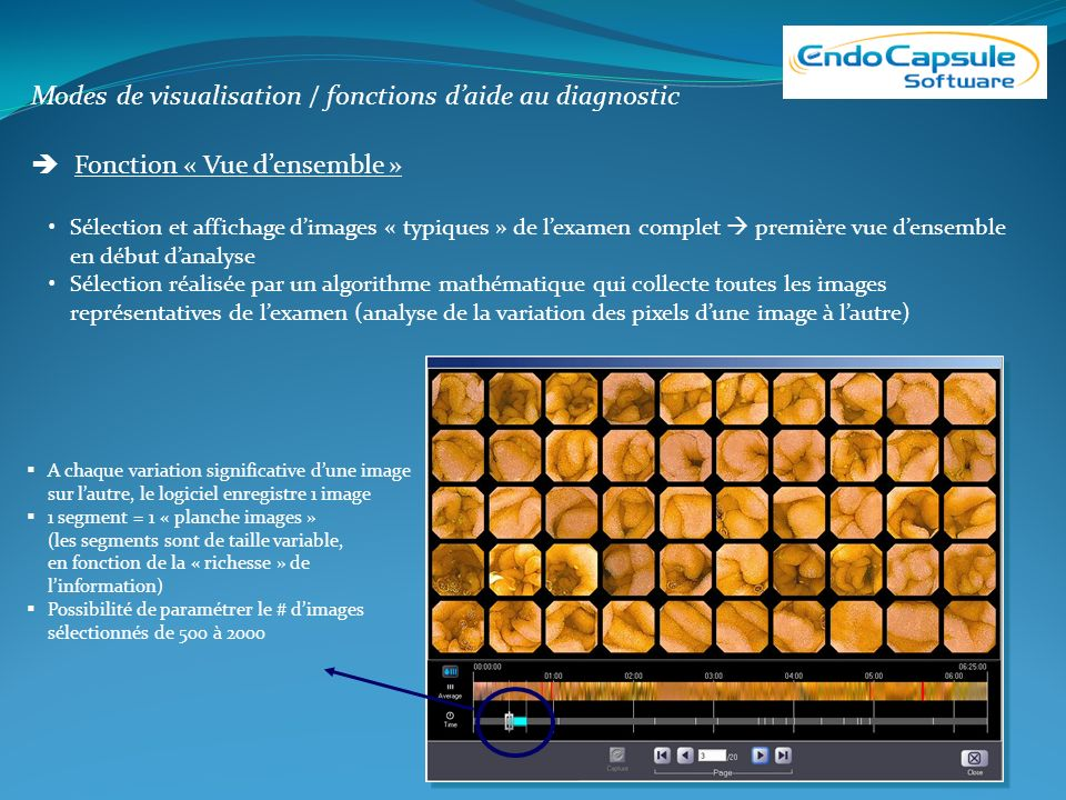Modes de visualisation / fonctions d'aide au diagnostic