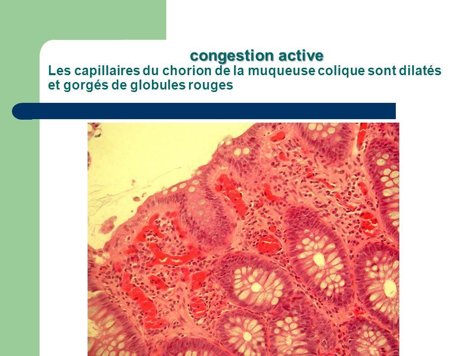 congestion active Les capillaires du chorion de la muqueuse colique sont dilatés et gorgés de globules rouges