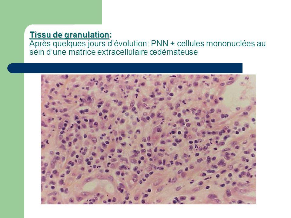 Tissu de granulation: Après quelques jours d'évolution: PNN + cellules mononuclées au sein d'une matrice extracellulaire œdémateuse