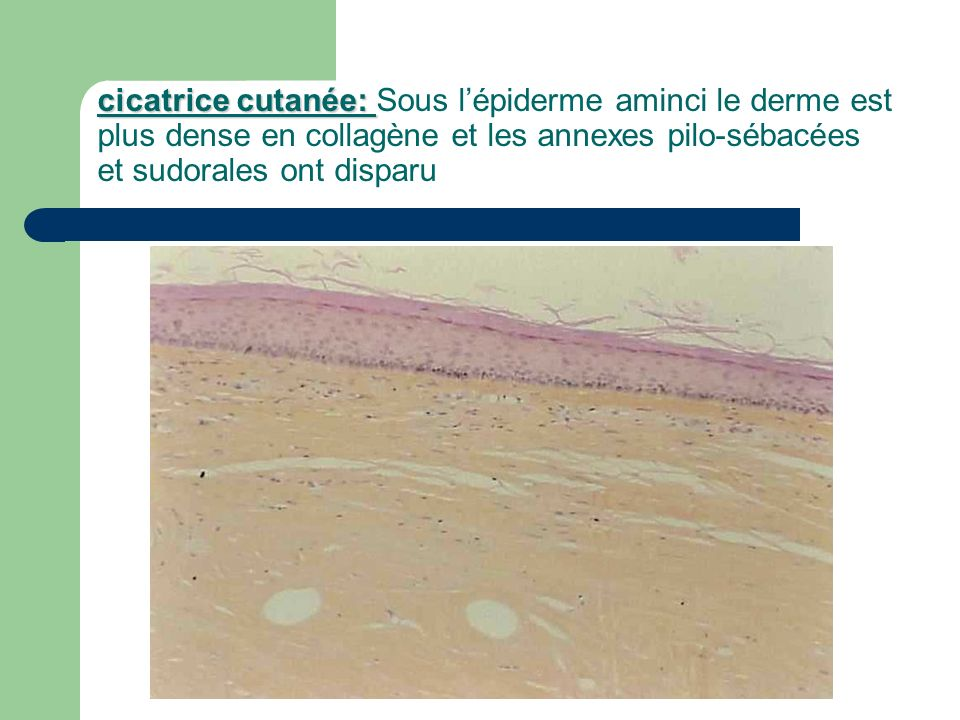 cicatrice cutanée: Sous l'épiderme aminci le derme est plus dense en collagène et les annexes pilo-sébacées et sudorales ont disparu