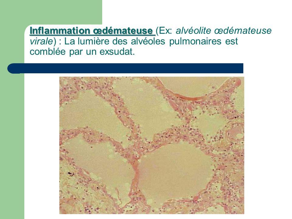 Inflammation œdémateuse (Ex: alvéolite œdémateuse virale) : La lumière des alvéoles pulmonaires est comblée par un exsudat.