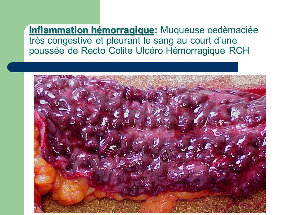 Inflammation hémorragique: Muqueuse oedèmaciée très congestive et pleurant le sang au court d'une poussée de Recto Colite Ulcéro Hémorragique RCH
